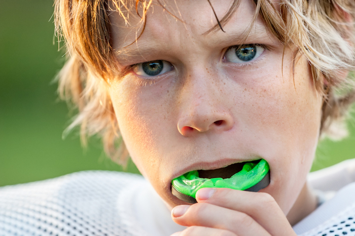 Hamsptead Orthodontic_mouthguard